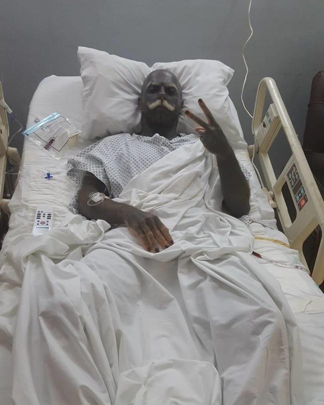 Adam po operacji usunięcia genitaliów