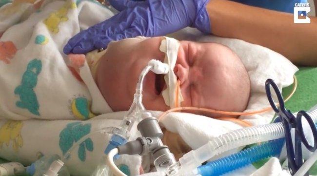 Od ciężko chorego niemowlęcia do zdrowej pięciolatki! Oto niezwykła historia małej Savannah!